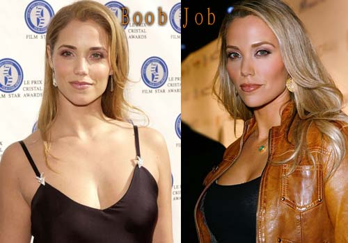 Elizabeth Berkley Breast Augmentation