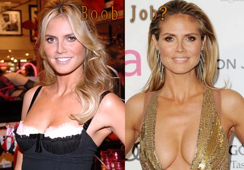 Heidi Klum Breast Implant