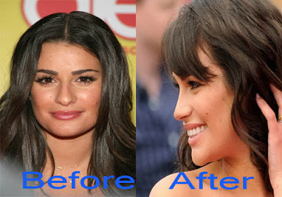 lea-michele-nose-job