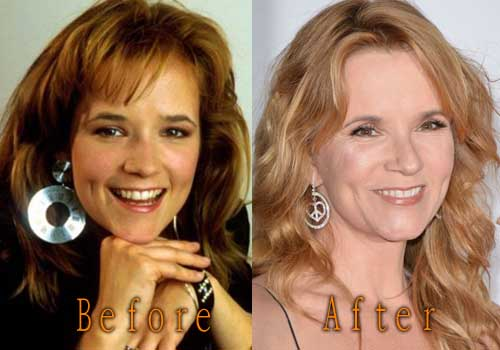 Lea Thompson Facelift, Botox