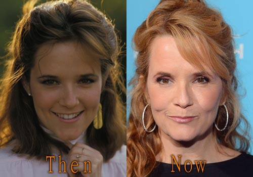 Lea Thompson Plastic Surgery