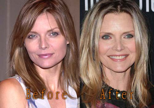 Michelle Pfeiffer Plastic Surgery Picture