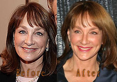 Nancy Snyderman Facelift, Botox