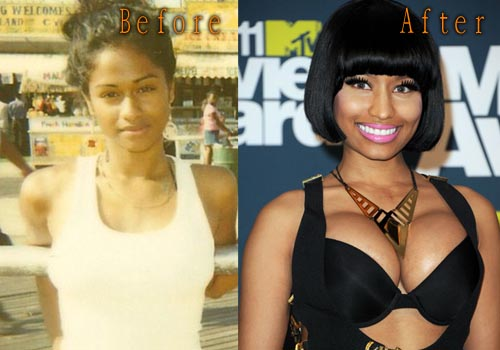 Nicki minaj before and after fake tits and ass