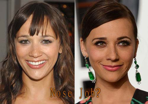 Rashida Jones Nose Job