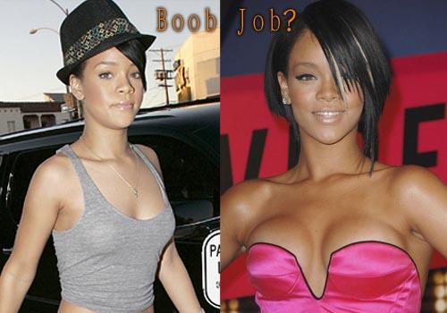 Rihanna Plastic Surgery Boob Job