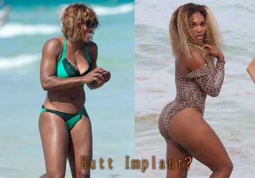 Serena Williams Butt Implants