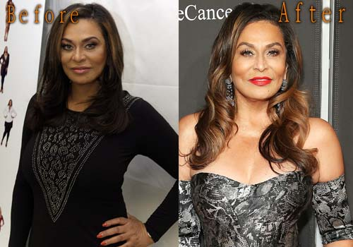 Tina Knowles Plastic Surgery Boob Job