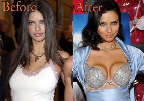 Adriana Lima Boob Job