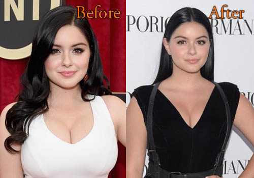 Ariel Winter Plastic Surgery Boobs