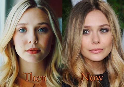 Elizabeth Olsen Plastic Surgery