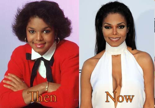 Janet Jackson Plastic Surgery