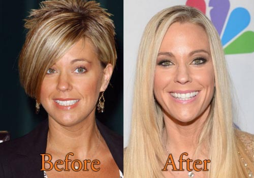 Kate Gosselin Facelift, Nose Job