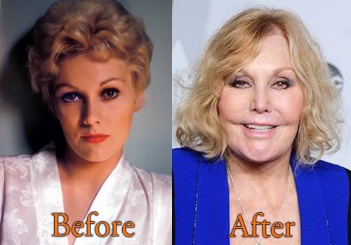 Kim Novak Plastic Surgery