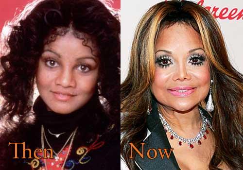 La Toya Jackson Plastic Surgery