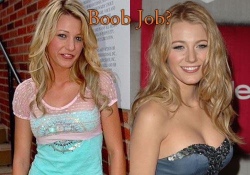 Blake Lively Boobs Job