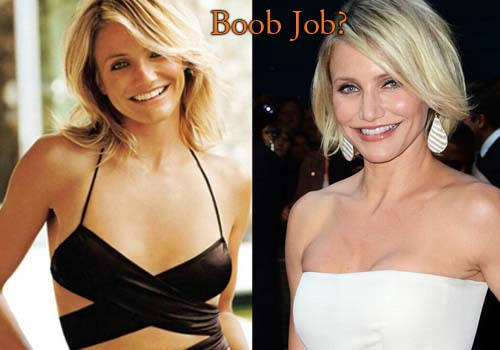 Cameron Diaz Plastic Surgery Boob Job