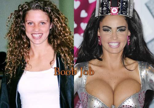 Katie Price Breast Implants