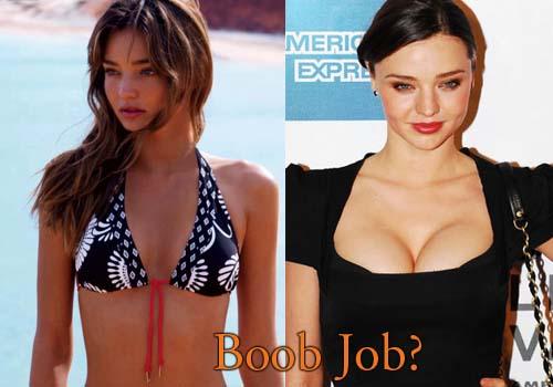 Miranda Kerr Boob Job