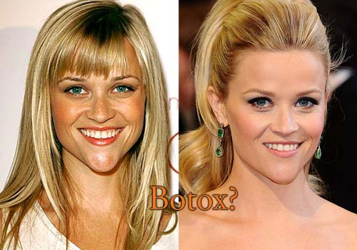 Reese Witherspoon Botox