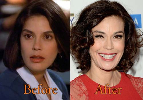 Botox before and after bollywood celebrity earrings