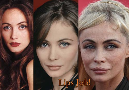 Emmanuelle Beart Lips Injection
