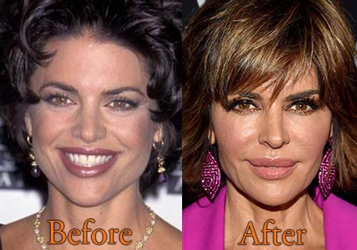 Lisa Rinna Plastic Surgery