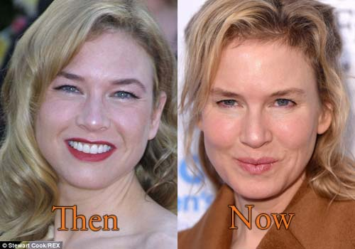 Renee Zellweger Bad Plastic Surgery