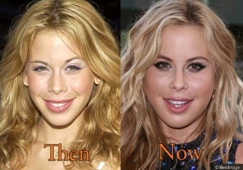 Tara Lipinski Cheek Surgery, Botox