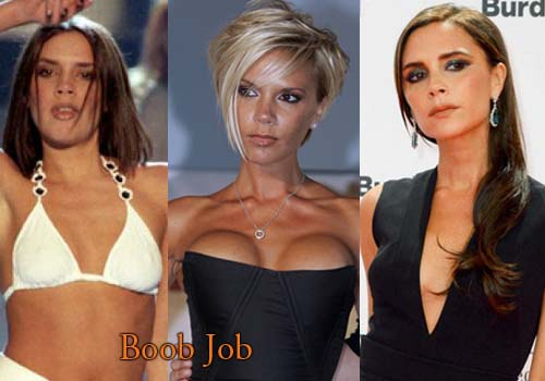 Victoria Beckham Plastic Surgery Breast Reduction Before ...
