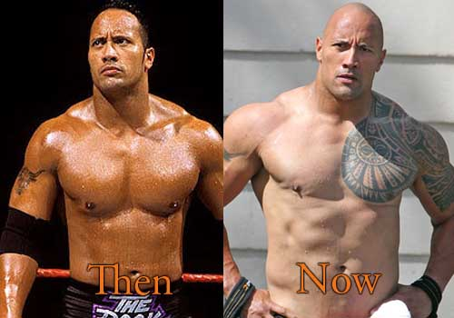 Dwayne Johnson Plastic Surgery, Before and After