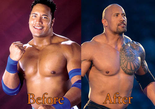 Dwayne Johnson Plastic Surgery
