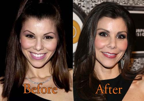 Heather Dubrow Plastic Surgery