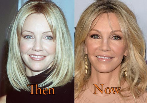 Heather Locklear Facelift