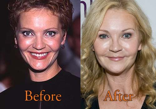 Joan Allen Plastic Surgery