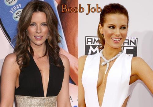Kate Beckinsale Boob Job