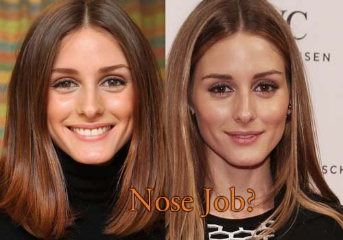 Olivia Palermo Nose Job