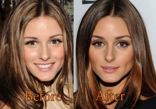 Olivia Palermo Plastic Surgery