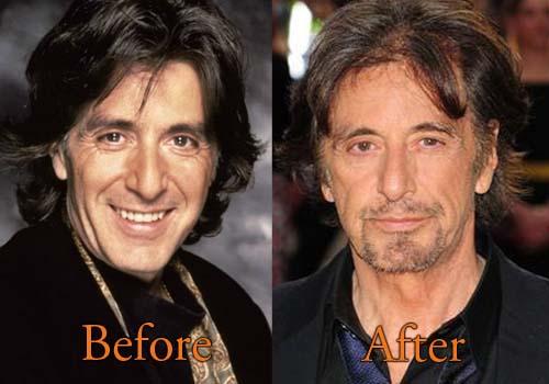 Al Pacino Plastic Surgery