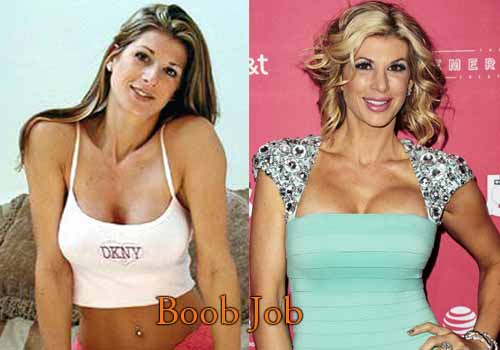 Alexis Bellino Plastic Surgery Boob Job