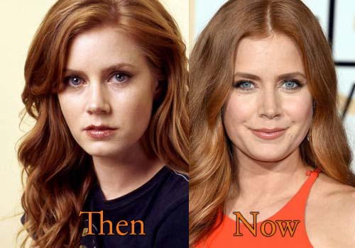 Amy Adams Botox, Nose Job