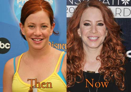 Amy Davidson Nose Job