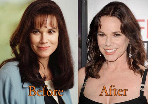 Barbara Hershey Facelift