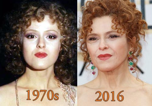 Bernadette Peters Facelift