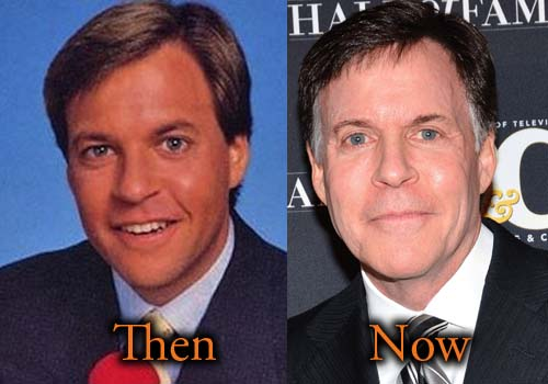 Bob Costas Plastic Surgery Picture