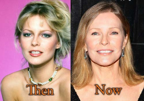 Cheryl Ladd Facelift, Botox Picture