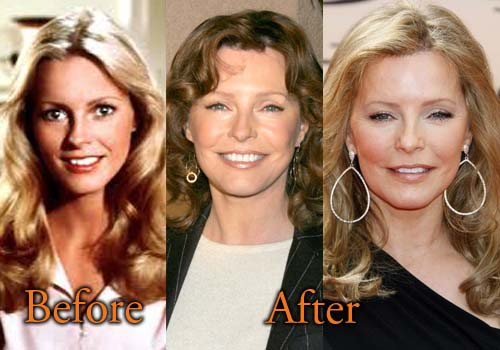 Cheryl Ladd Plastic Surgery Before And After Facelift