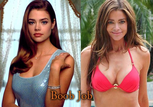 Denise Richards Plastic Surgery Boob Job