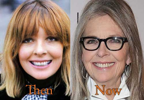 Diane Keaton Facelift