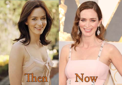 Emily Blunt Plastic Surgery Picture